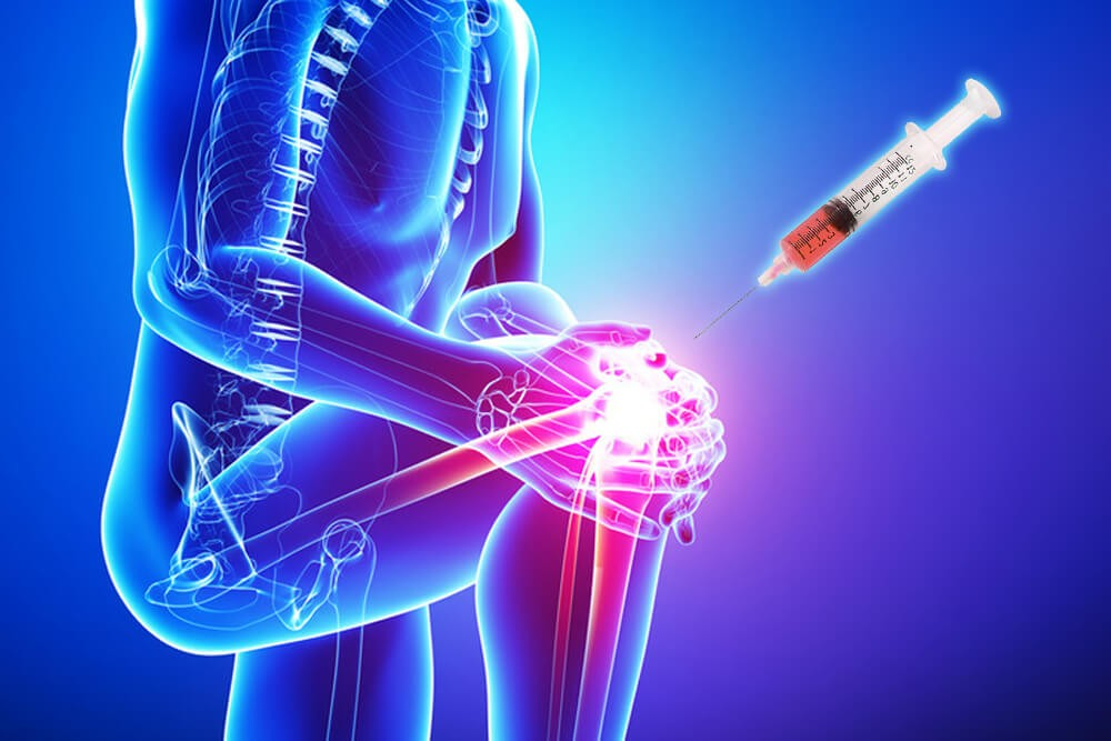 prp joint pain treatment ernakulam, kerala