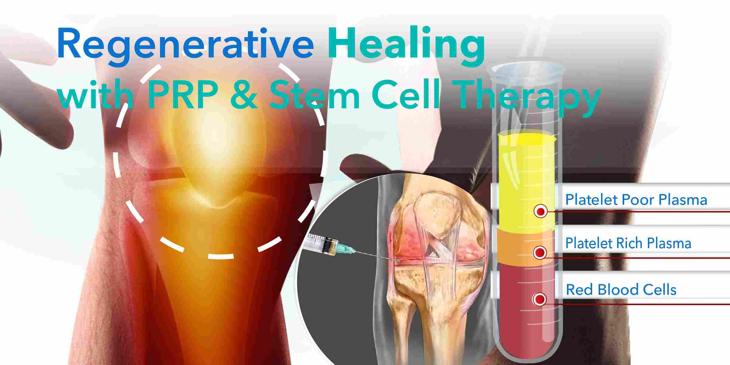 prp treatment kochi, thrissur, kerala, india