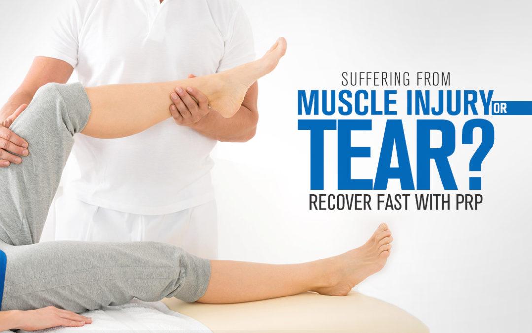 muscle sprain prp treatment kochi, ernakualm, kerala