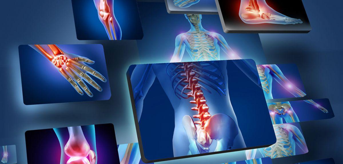 musculoskeletal pain prp therapy kochi, ernakulam, kerala