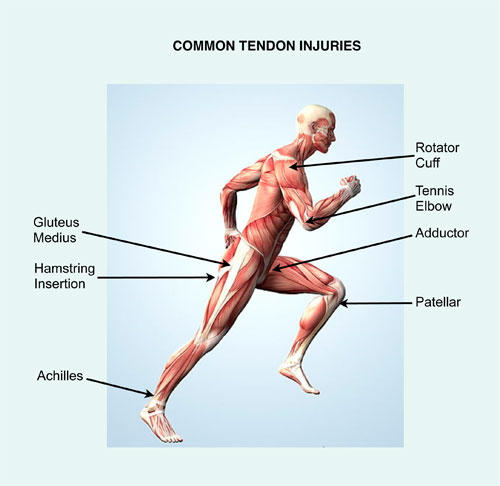 chronic tendon injury prp treatment kochi, ernakulam, kerala, india
