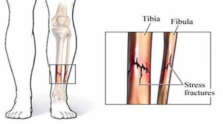 stress fracture prp treatment kochi, ernakulam, kerala, india