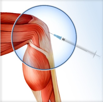 effective orthopedic prp therapy kochi, ernakulam, kerala, india