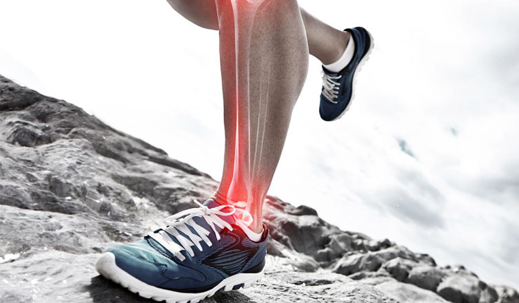 Shin Splints PRP Treatment in Ernakulam, Kerala, India